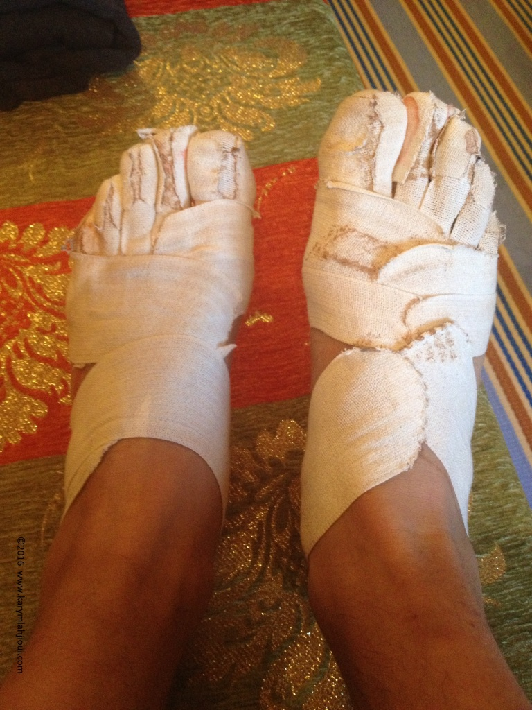 MDS2016 - Post course - Pieds 1