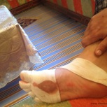 MDS2016 - Post course - Pieds 3
